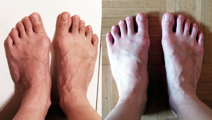 How to get rid of bunions